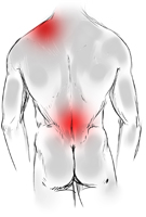 Rückenschmerzen, Nackenschmerzen